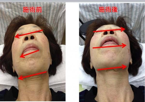 pic-kogao 小顔矯正 / 40代女性の一番の悩みを解決するこんな方法