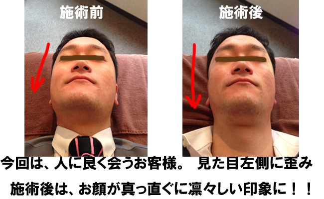 pic-kogao 小顔矯正 (整顔矯正) / 東京板橋区泉町 本蓮沼駅20秒の整体院
