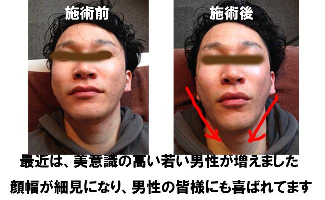 unnamed-file 小顔矯正 肌荒れに悩む男性にも効果的