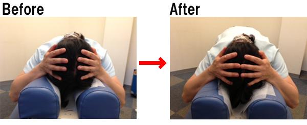 zutsuu-beforeafter 自律神経を整える。体が不調の時は頭が大きくなっている?